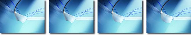 ATOMS Adjustable Implant SUI