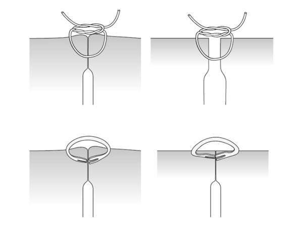 OTSC vs Suture